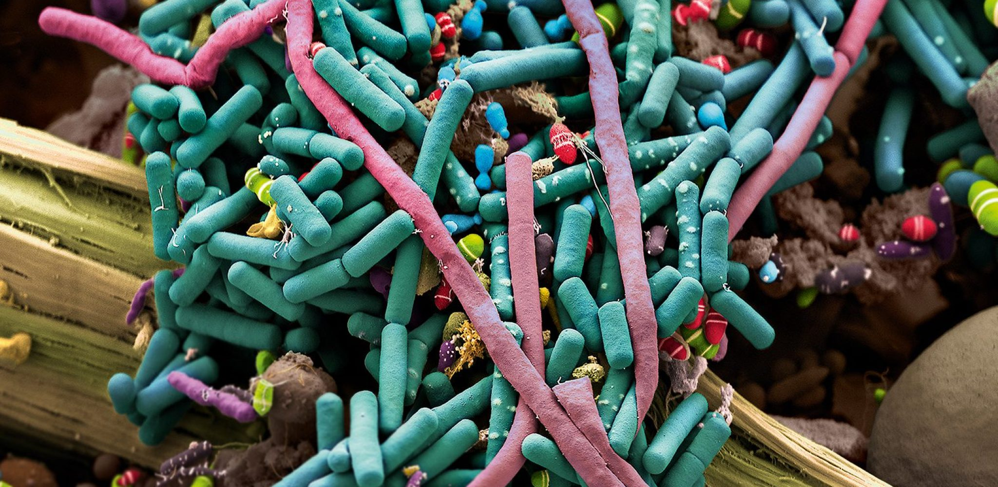 Das Titelbild «Intestinal Bacteria» (supported by HP Marti, Swiss TPH, Pathology, University Hospital Basel, and School of Life Sciences, FHNW, Muttenz) wurde uns freundlicherweise von Martin Oeggerli, zur Verfügung gestellt.